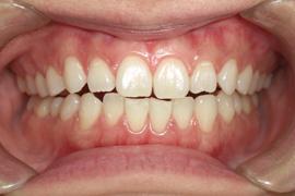 歯肉(歯ぐき)のピーリングについて